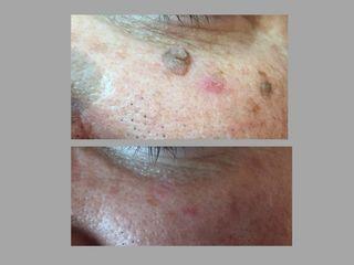 Antes y después eliminación verrugas