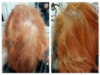 Alopecia-547865