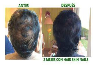 Alopecia-547866
