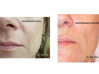 Rellenos faciales-414815
