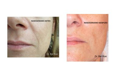 Antes y después rellenos Nasogenianos