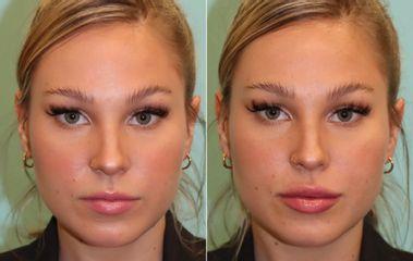 Antes y después Aumento de labios