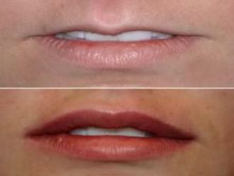 Aumento labios - 547184