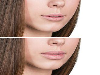 Aumento labios-547185