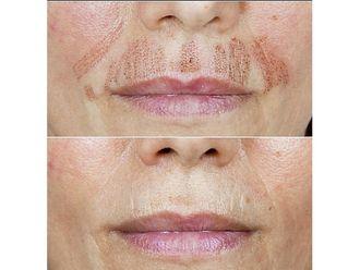 Rejuvenecimiento facial-630497