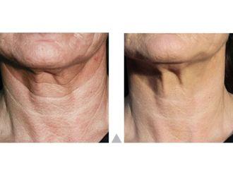 Rejuvenecimiento facial-639815