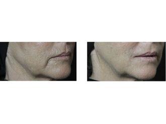 Rejuvenecimiento facial-639816