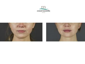 Aumento labios-639818