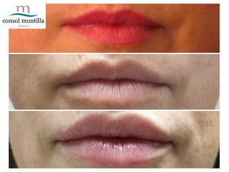 Aumento labios-647502