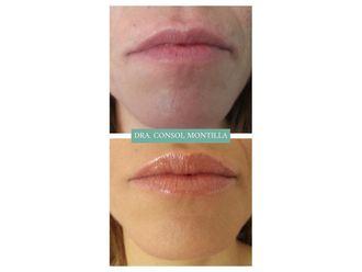 Aumento labios-663199