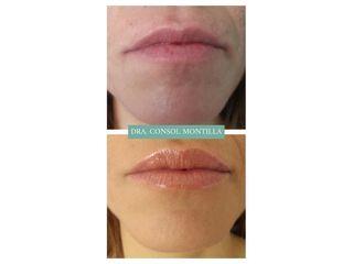 Aumento de labios - Dra. Consol Montilla