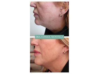Ácido hialurónico - Dra. Consol Montilla