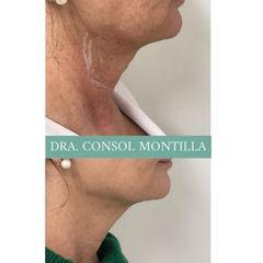 Hilos tensores - Dra. Consol Montilla