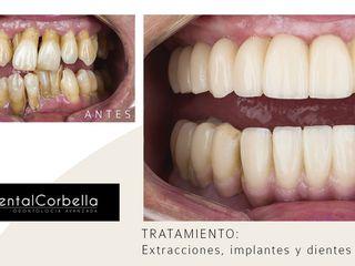 antes y despues implantes dentales