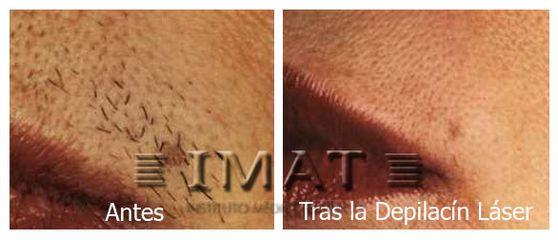 Antes y después Depilación Laser