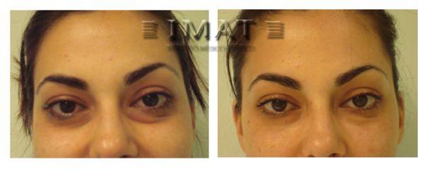 Antes y después Relleno de ojeras