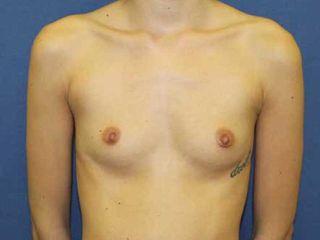 Pre aumento mamario