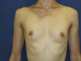 2) Pre aumento prótesis anatómicas