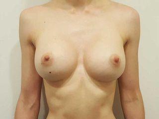 2) Post - aumento con prótesis anatómicas
