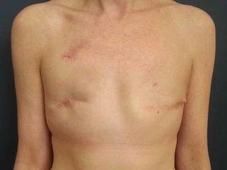 Pre reconstruccion tras mastectomia