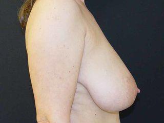 Pre reduccion vista lateral