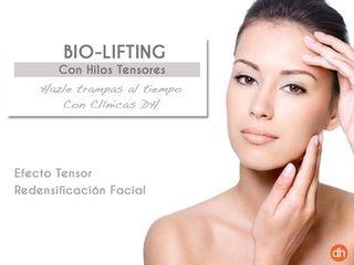 Bio- Lifting con Hilos tensores. Redensificación Facial sin cirugía