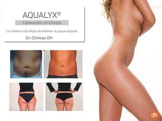 Tratamientos de Aqualyx. Antes y después