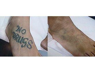 Eliminación de tatuajes-499603