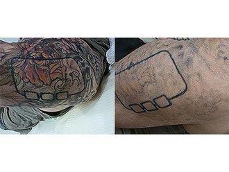 Eliminación de tatuajes-499605