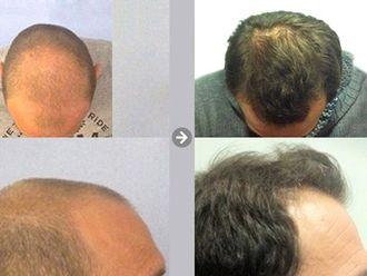 Alopecia-469204