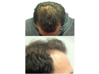 Antes y después Tratamiento capilar.