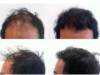 Alopecia-497360