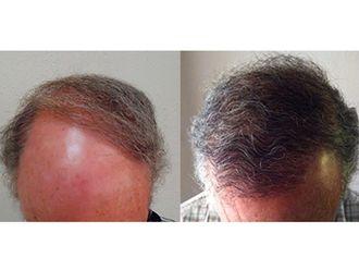 Alopecia-497362