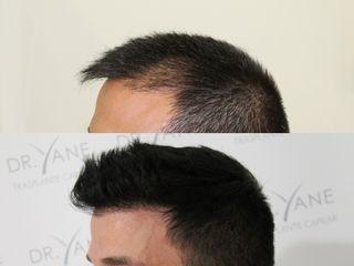 Antes y después Trasplante capilar -  Técnica FUE