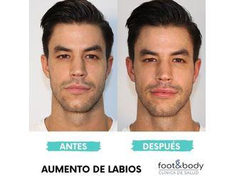 Aumento labios-645576