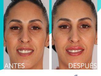 Aumento labios-738646
