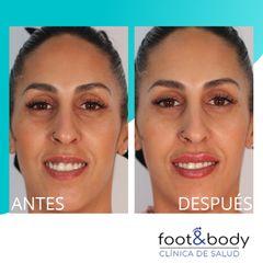 Antes y después Aumento de labios - Foot And Body