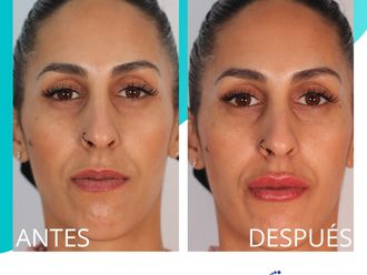 Aumento labios-738647