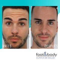 Antes y después Bótox - Foot And Body
