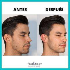 Aumento de labios - Foot And Body