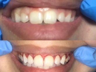 Cirugía maxilofacial-634028