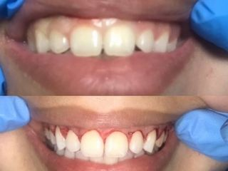 Corrección de la sonrisa gingival mediante gingivoplastia
