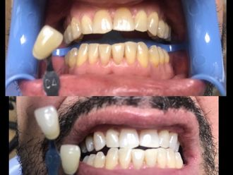 Blanqueamiento dental - 634029