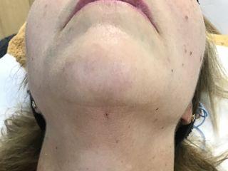 Marcación del cuello mediante Laser endolift