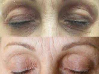 Blefaroplastia sin cirugía-634174