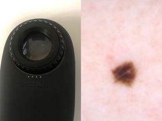 Estudio y seguimiento de lunares y lesiones de la piel por dermatoscopio