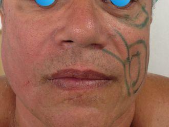 Rejuvenecimiento facial-634183