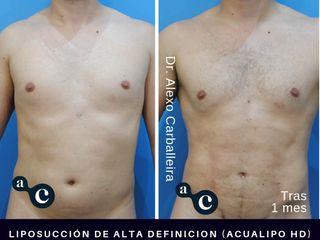 Liposucción de alta definición (Acualipo HD)