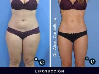 Liposucción - 637716