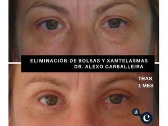 Eliminación ojeras - 637717